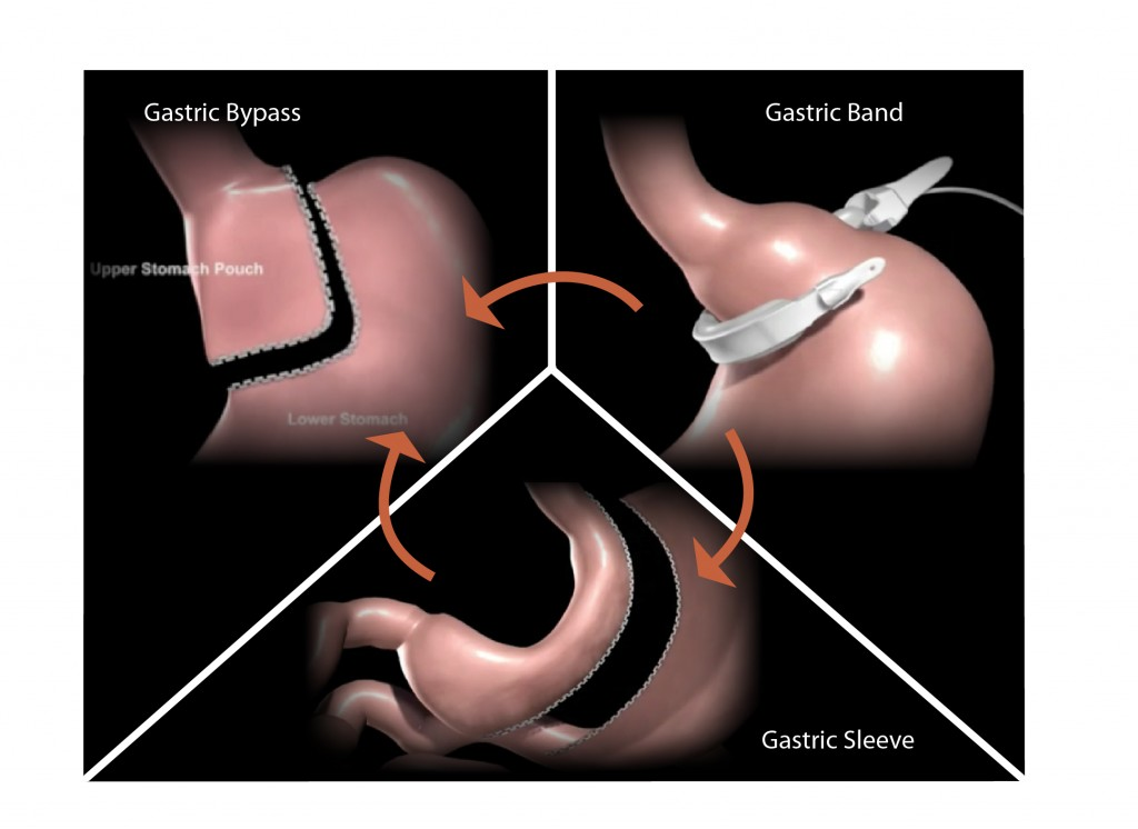 Revision Bariatric Surgery Fig 01